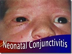 neonatal conjuctivitis