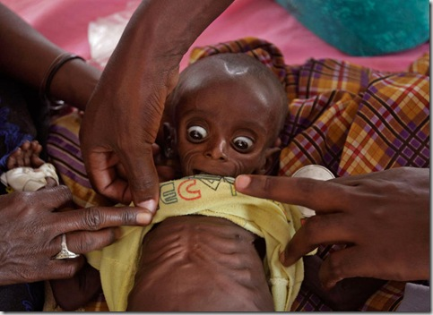 Kenya East Africa Famine