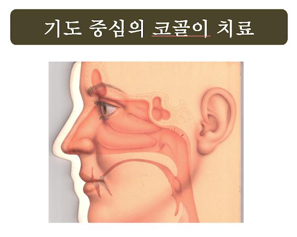 기도중심의 코골이 치료.png