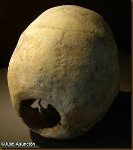 Cráneo trepanado del dolmen de Aizibita - Cirauqui - Museo de Navarra