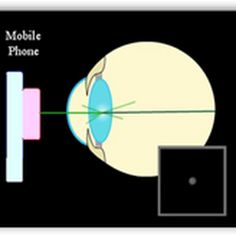 iPhone With Cheap Plastic Lens To Detect Cataract–MIT