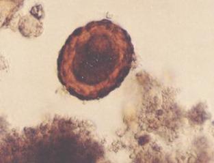 Ovo fértil de Ascaris lumbricoides