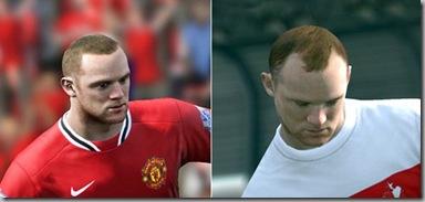 Wayne Rooney receives hair transplant