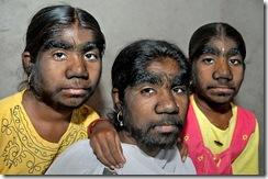 """Семья """"оборотней"""" из Индии"""