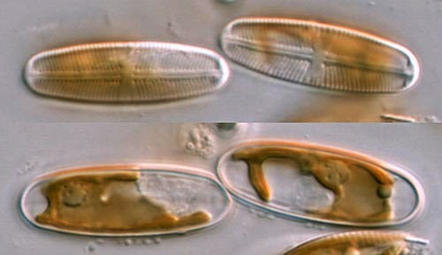 Auxospores in Diatoms