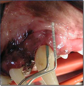 La malattia parodontale