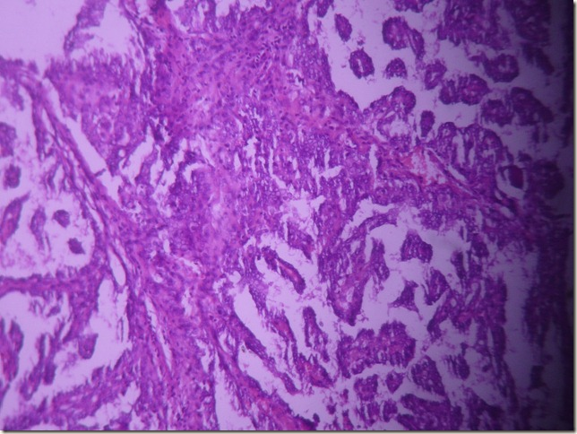 thyroid gland papillary carcinoma