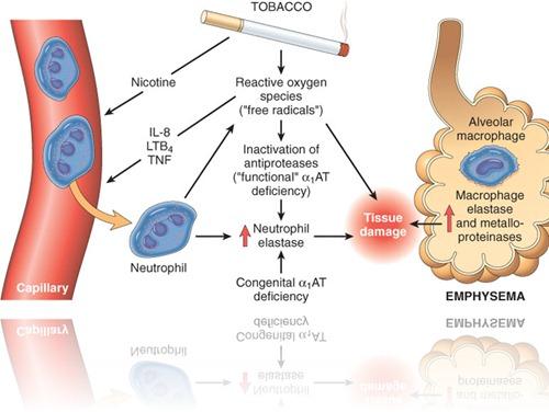 patho emphysema