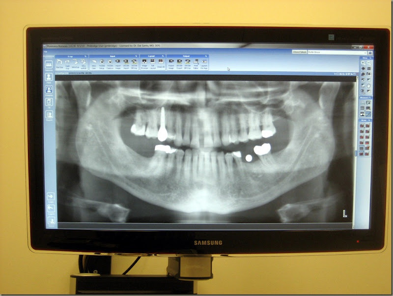 Teeth xray pano_0002