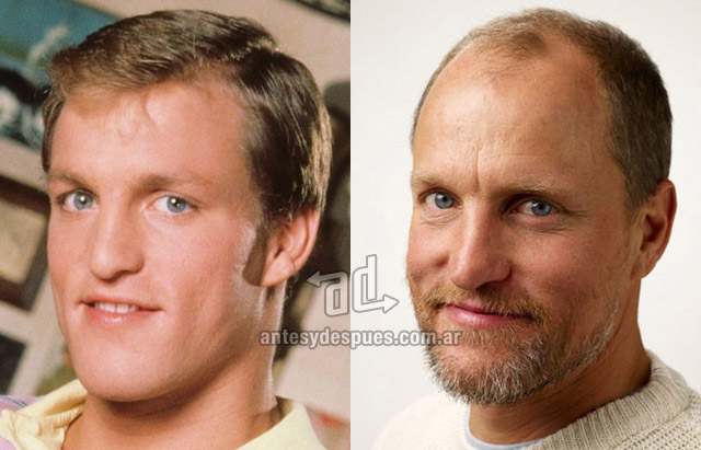 Hair Loss Before &amp; After of  Woody Harrelson