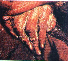 Juanita's frozen hand.  Photo from Wikimedia Commons.