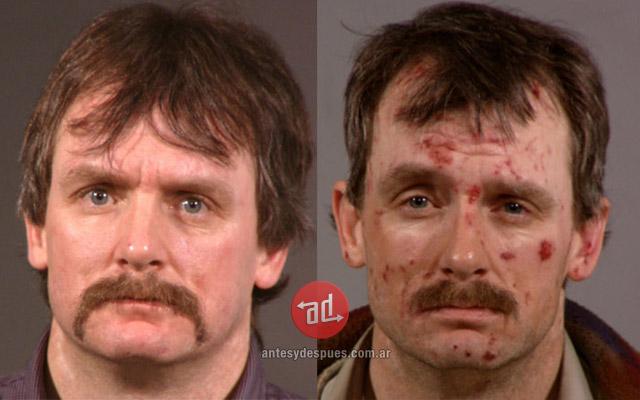 Una cara antes y después de la Droga! ♦ (Metanfetamina)