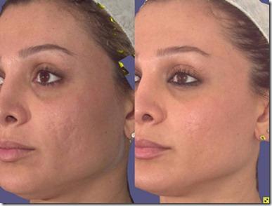 acne-mhid