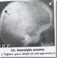 Ch.Hemolytic anemia(skull)