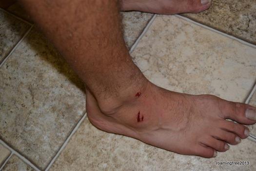 Nicolas' injured foot