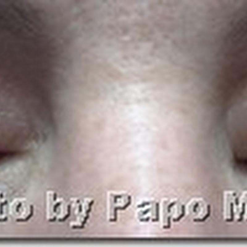 Epidrat Olhos – O hidratante que os meus olhos precisavam durante a dermatite atópica