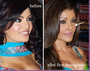 koena_mitra_before_and_after_nose_job