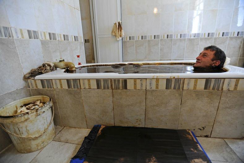naftalan-crude-oil-baths-1