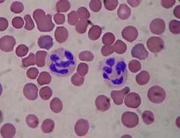 hemaceas e leucocitos