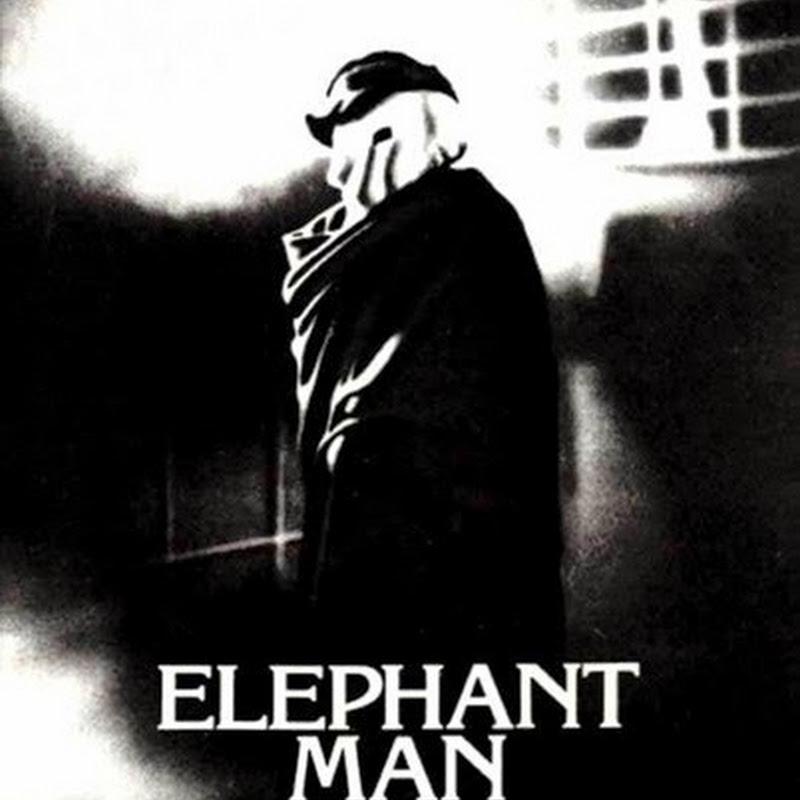 L'Uomo Elefante è un film sull'umanità che si nasconde sotto una maschera mostruosa.