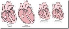 cardiomiopatia restrittiva nel gt