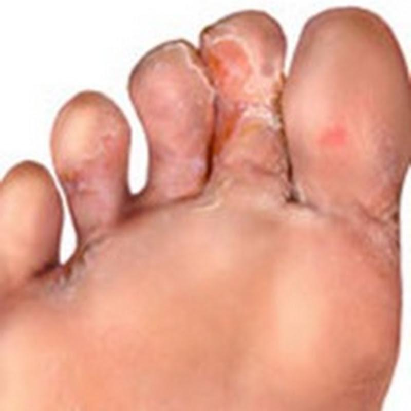 نصائح هامة لعلاج والوقاية من فطريات قدم الرياضي – تأكل بين الاصابع