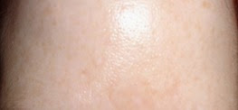 Forehead at start of Derma Cellular Ultimate Vitamin C Booster use