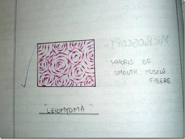 leiomyoma diagram histopathology
