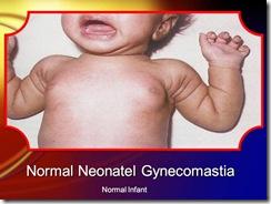 neonatal gyncomastia medicalshow