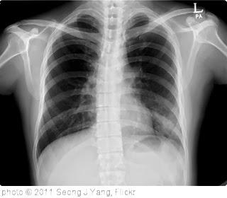 Pneumonia: Radang pada Jaringan Paru