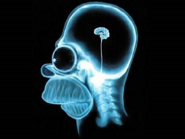 6- O cérebro humano