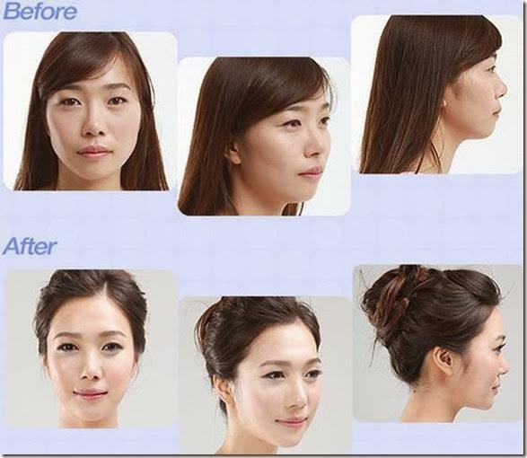 korean-plastic-surgery-37
