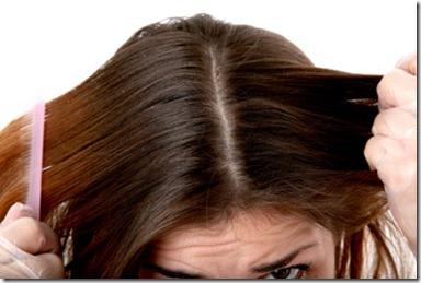Remedios Caseros para el cabello Grasoso y con Caspa1