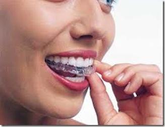 invisalign tratamientos baratos de ortodoncia invisible en argentina no mas braquets