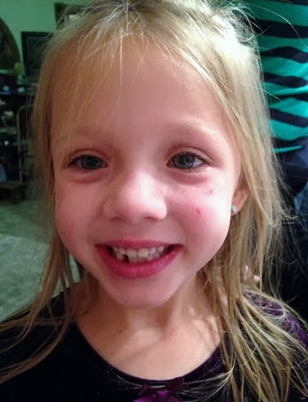 2014-01-01 lost tooth