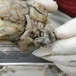 brain_dissect18.jpg