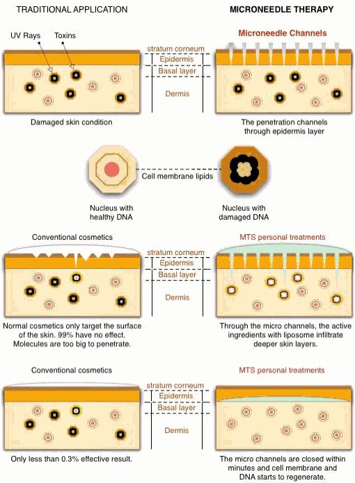 Derma Roller Penetrao de Cremes, Vitamina C e outros produtos usados no tratamento de estrias e cicatrizes.