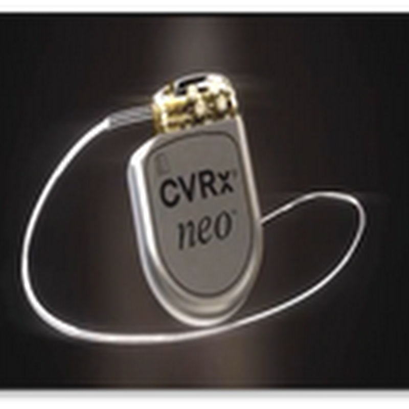 Barostim neo a Pacemaker Device Type Implant to Control Blood Pressure, CVRx Technologies