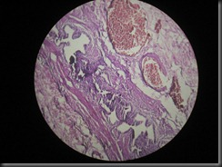 cholecystitis high resolution histology slide tsnaps