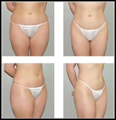 liposuction-surgery5