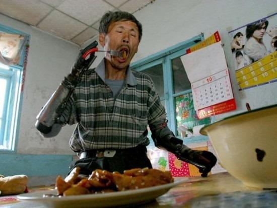 Prótese chinesa 02