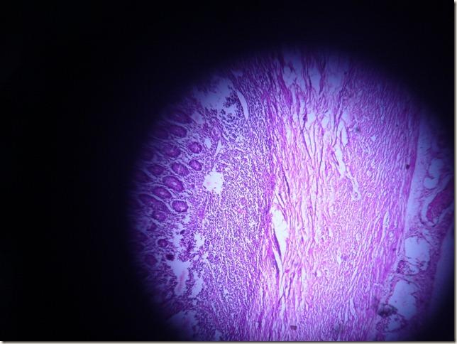 acute appendicitis histopathology