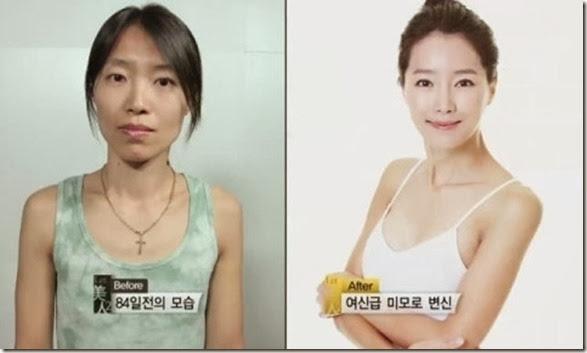 korean-plastic-surgery-15