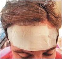 Jovem foi agredido no rosto e na cabeça (foto: reprodução/Metro Curitiba/Lilian Messias)