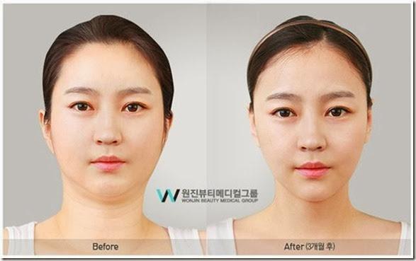 korean-plastic-surgery-27