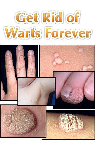 【免費醫療App】Get Rid of Warts Forever-APP點子
