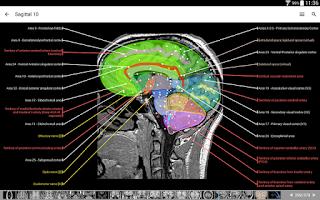 Screenshot of IMAIOS e-Anatomy