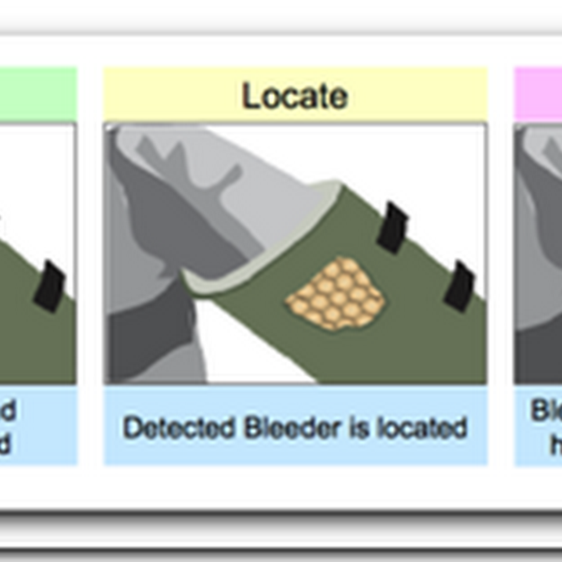 Ultrasound cuff to stop internal bleeding on battlefield