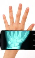 Screenshot of X-Ray Scanner Pro