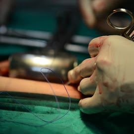 Surgery by Mandeep Goma - News & Events Health ( sutures, hands blood, surgery instruments, blood, surgery )